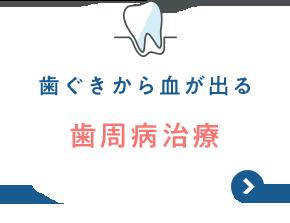 歯ぐきから血が出る 歯周病治療